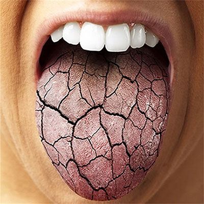 A Dry Mouth | British Association of Oral and Maxillofacial Surgeons